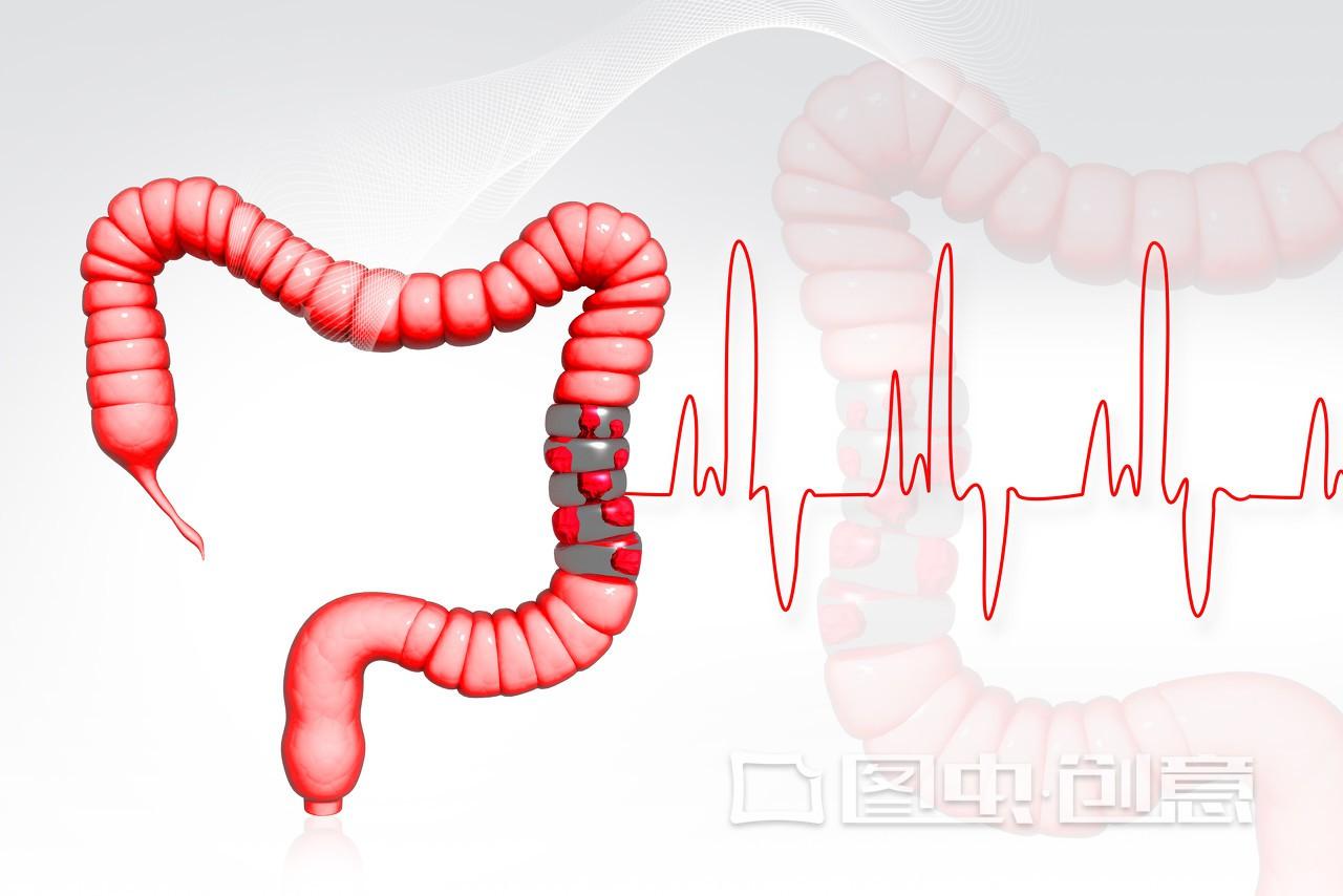 肠系膜上动脉夹层能自愈吗 肠系膜上动脉夹不动手术行吗图片